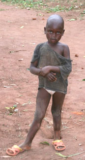 A malnourished and ill-clothed Congolese child